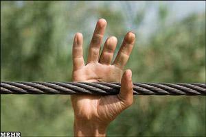 انگشتان قطع شده روستاییان گاودانه جراحی می شود
