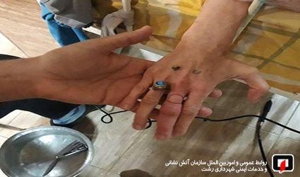 خارج کردن حلقه انگشتری از دست بیمار بستری در مرکز توانبخشی/ آتش نشانی رشت